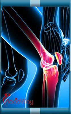 ACL Tear Reconstruction in Chennai India