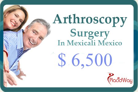 Shoulder Arthritis Treatment Cost in Mexico