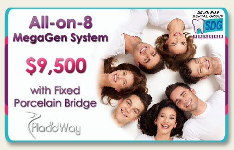 All on Eight System with fixed porcelain bridge Price