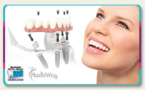All on four Dental Implants with Acrylic Bridge in Los Algodones Mexico