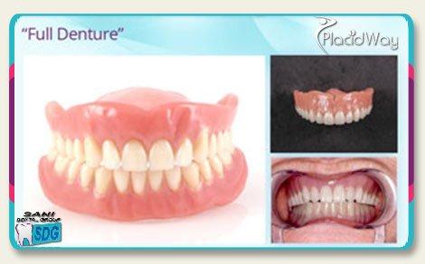 Full Mouth Porcelain Dentures