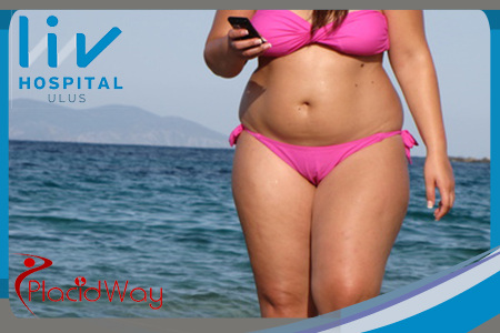 Gastric Band Surgery In Turkey