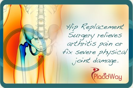 Get a hip Replacement Surgery that relieves physical pain and damage in Family Hospital