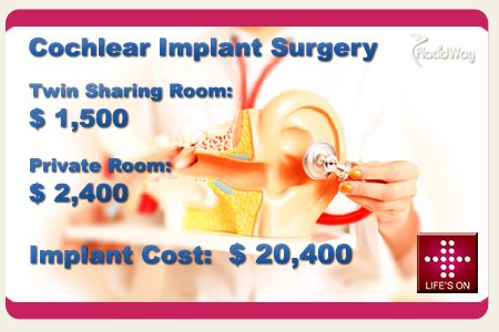 Cochlear Implant Cost in India