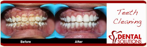 Before and After Teeth Cleaning in India Bangalore
