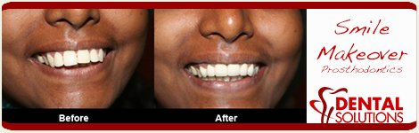 Before and After Smile Makeover in India Bangalore