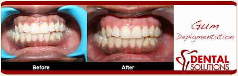 Before and After Gum Depigmentation Treatment in India Bangalore