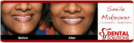 Before and After Smile Makeovers Treatment in India Bangalore