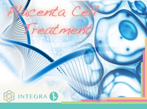Placenta Cell Treatment of Multiple Sclerosis Disease at Integra Medical Center in Mexico