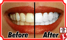 Teeth Whitening Bangalore India