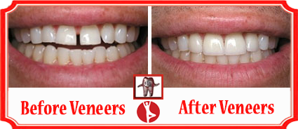 Cosmetic Dentistry Bangalore