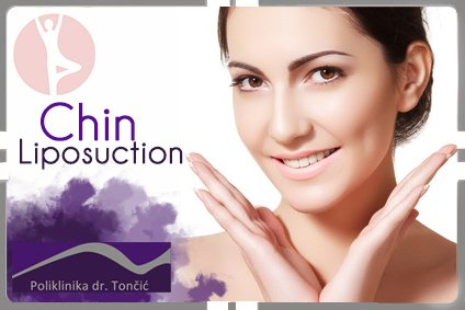 Chin Liposuction in Croatia