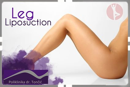 Leg Liposuction in Croatia