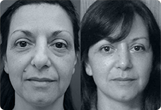 Before And After Rhinoplasty Turkey
