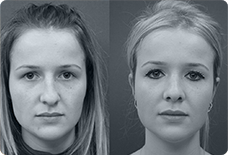 Before And After Nose Surgery Istanbul