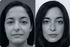 Before And After Nose Surgery Turkey