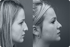 Before And After Rhinoplasty Istanbul