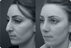 Before And After Nose Surgery in Istanbul, Turkey
