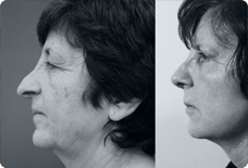 Before And After Rhinoplasty in Istanbul, Turkey