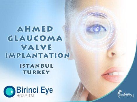 Ahmed Glaucoma Valve Implantation Eye Surgery in Istanbul, Turkey