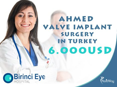 Ahmed Glaucoma Valve Implant Surgery Cost in Turkey