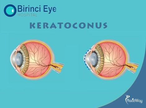 Keratoconus Treatment with femtosecond Laser Transplantation Turkey Birinci