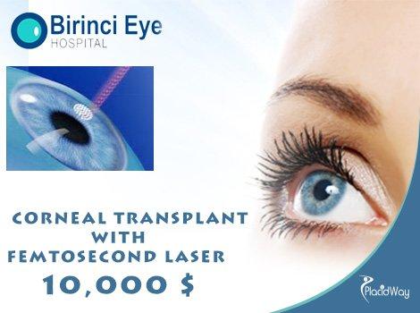 Brinici Price Corneal Transplant with Femtosecond Laser Cost in Turkey