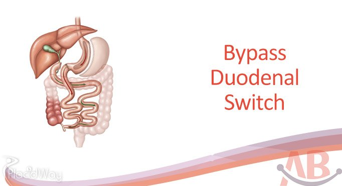Bypass Duodenal Switch at Asian Bariatrics India, Ahemdabad