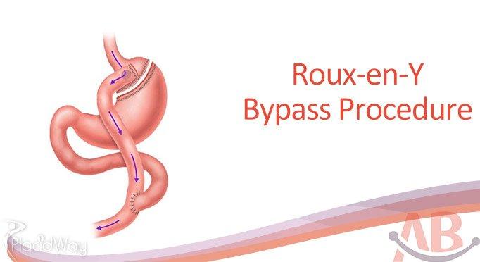 Roux-en-Y-Obesity Surgery at Asian Bariatrics India Ahmedabad