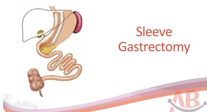 Sleeve Gastrectomy at Asian Bariatrics India, Ahemdabad