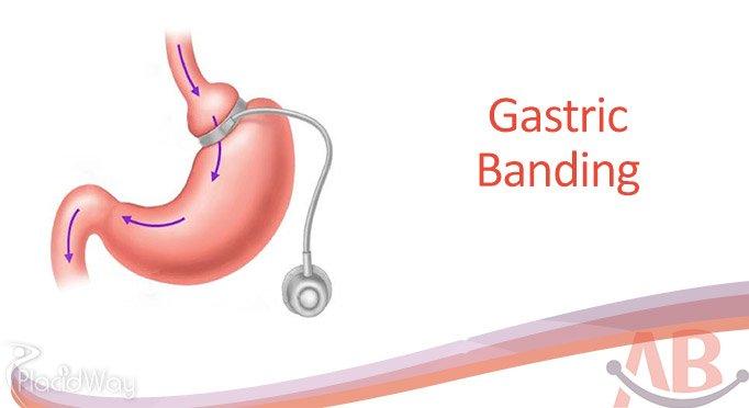 Adjustable Gastric Band by Asian Baritarics India Ahmedabad