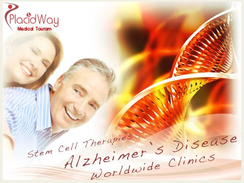 Stem Cell Therapy for Alzheimer Disease Worldwide