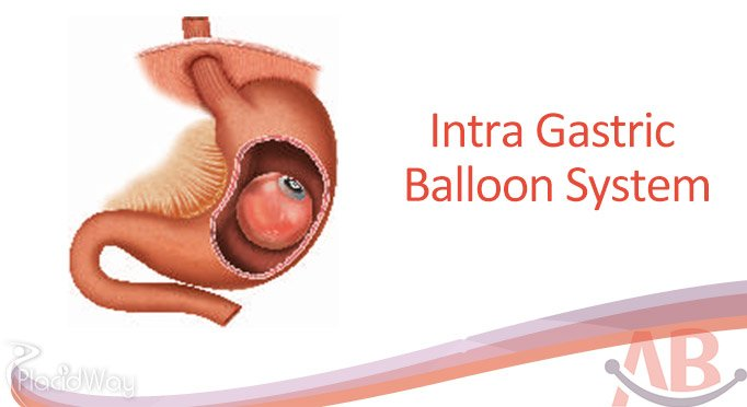 Intra Gastric Baloon System Bariatric Surgery Ahmedabad India