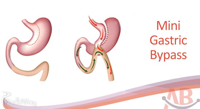 Mini Gastric Bypass in Ahmedabad Asian Bariatrics