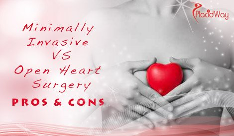 Minimally Invasive Surgery versus Open Heart Surgery - Pros & Cons