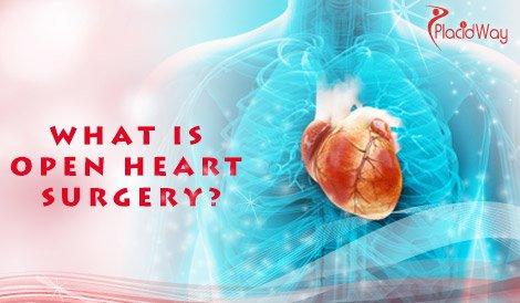 Define Open Heart Surgery
