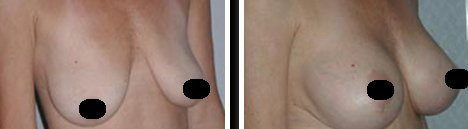 Mexico Breast Lift Before and After Images