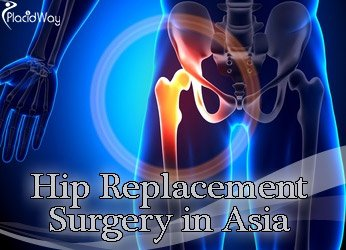 Hip Replacement Options Asia