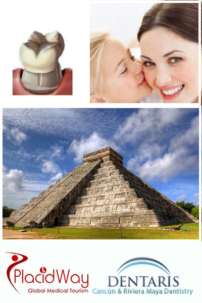 Dental Crowns in Cancun Mexico