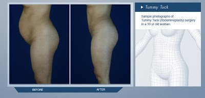 Tummy Tuck Before and After Images