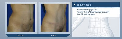 Tummy Tuck in Mexico Before and After Pictures