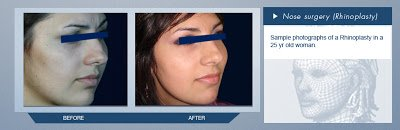 Rhinoplasty Mexico Before and After Pictures