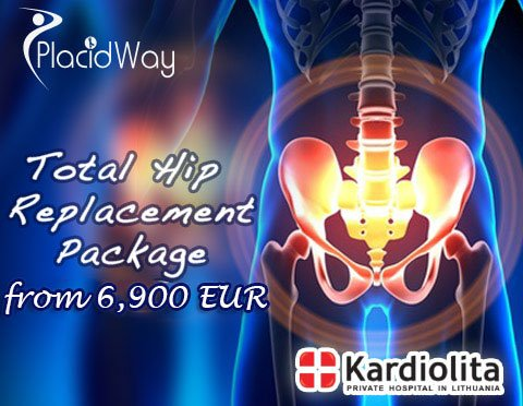Total Hip Replacement Package Price in Lithuania
