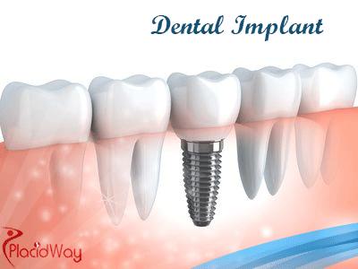 Dental lmplant Treatment