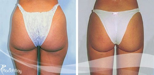 Liposuction Before and After Argentina