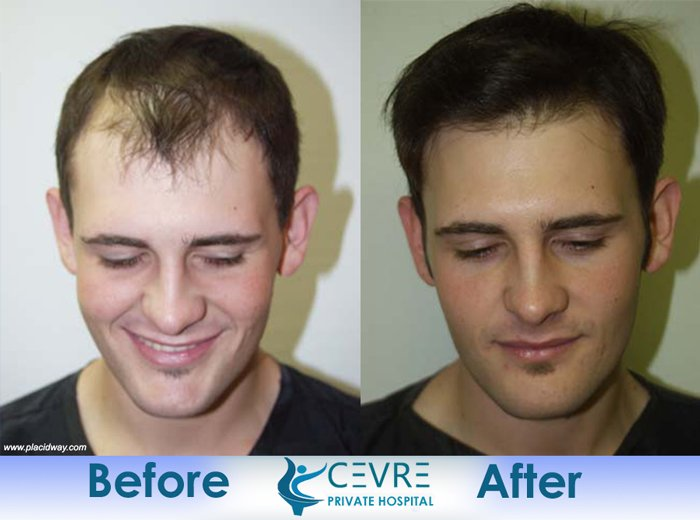 This Patient E To Our Office Seeking A Restorative Hair Transplant Surgery Fix His Botched He Traveled Turkey