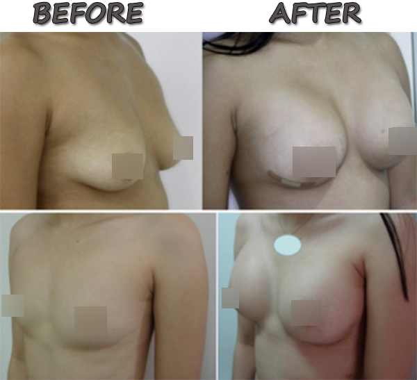Breast Augmentation Before and After Pictures Philippines