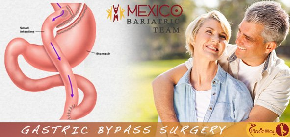 mexico bariatric team obesity clinic gastric bypass surgery in mexicali image