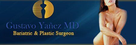 Bariatric Surgery in Mexico at Dr. Yanes in Tijuana Mexico banner