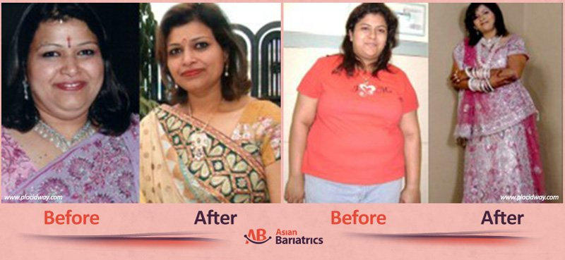 before after bariatric surgery in india women after obesity procedure in ahmedabad by asian bariatrics
